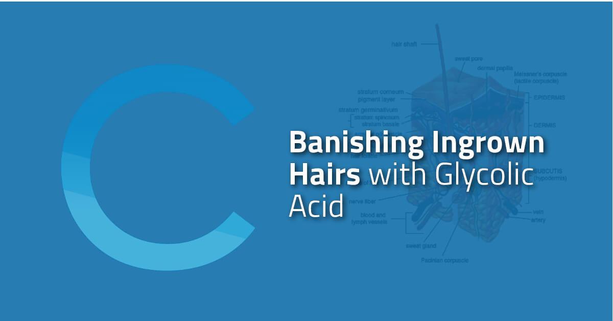 Banishing Ingrown Hairs with Glycolic Acid