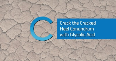 Cracked Heel Conundrum Glycolic Acid