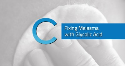 Fixing Melasma with Glycolic Acid