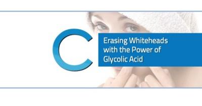 Erasing Whiteheads Glycolic Acid