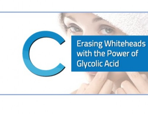 Erasing Whiteheads with the Power of Glycolic Acid